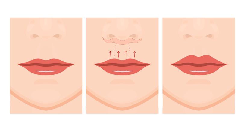 する 唇 整形 薄く