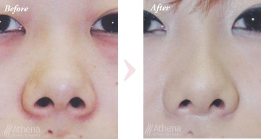 鼻 の 穴 を 小さく する 方法 鼻の穴を小さくする方法!大きい原因&注意点も徹底解説
