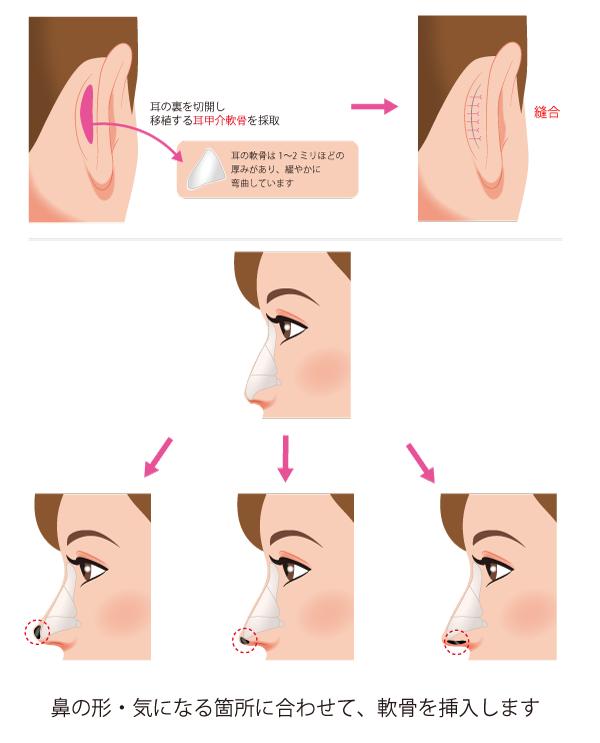 銀座 鼻 整形